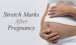 STRETCH MARKS AFTER PREGNANCY